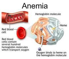 Obat Herbal Anemia Hemolitik Yang Aman